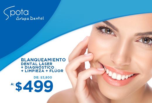Blanqueamiento dental láser + diagnóstico + limpieza + flúor